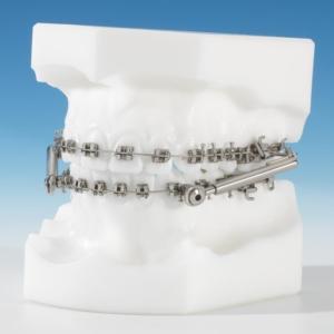 Dr Eberhard festsitzende Zahnspangen unabhängige Apparaturen